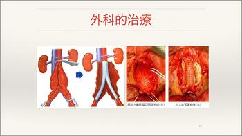 心臓・大動脈外科手術最前線 20142010-2_Part17.jpg
