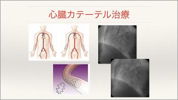心臓・大動脈外科手術最前線 20142010-2_Part4.jpg