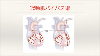 心臓・大動脈外科手術最前線 20142010-2_Part5.jpg